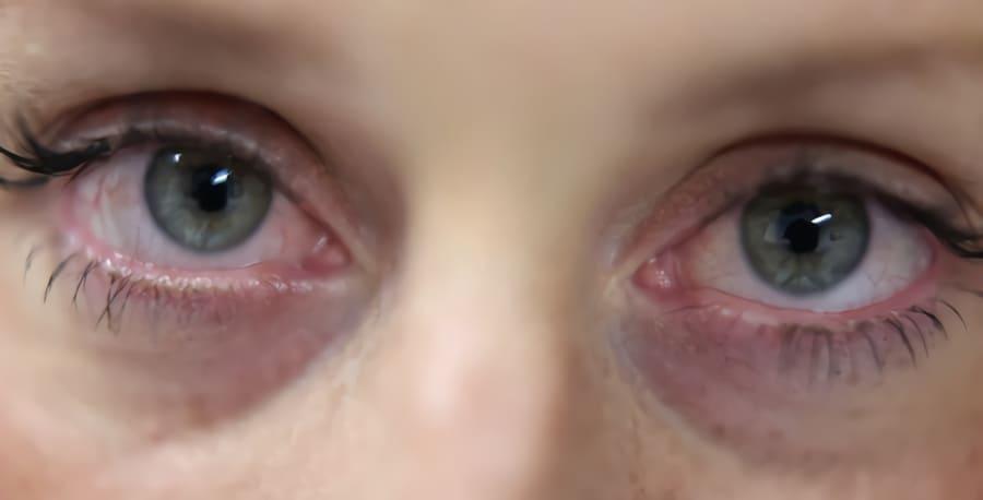 Se mina ögon